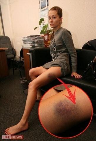 девушку избили по попе
