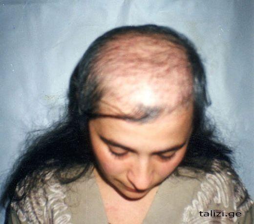 скажите пожалуйста при каких случа¤х выпадают волосы при химиотерапии или облучении