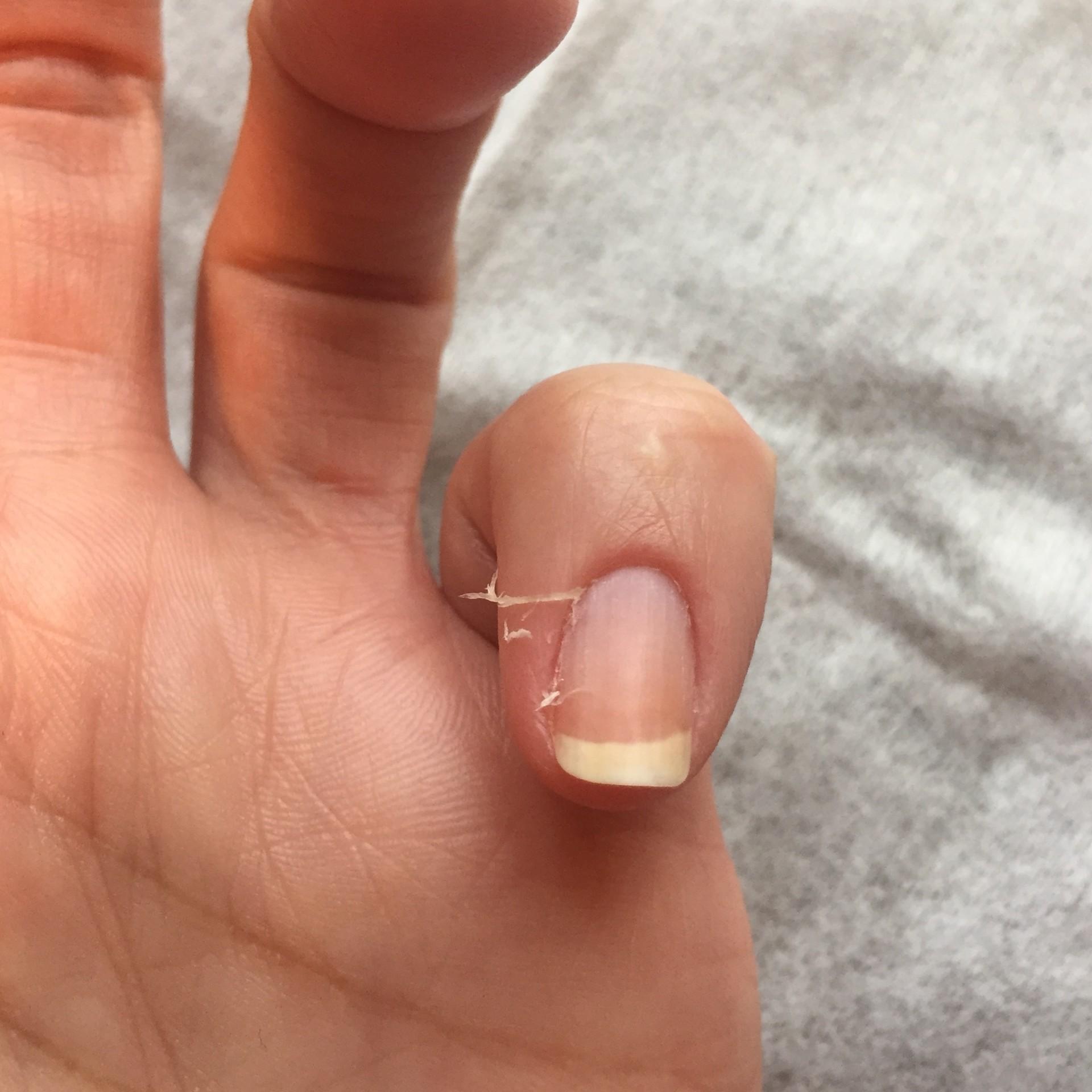 Маникюр на обрезанных ногтях